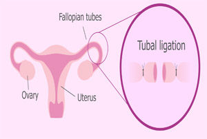 Pregnancy after Tubal Ligation