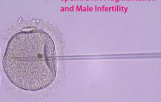 Sperm DNA Fragmentation and Male Infertility