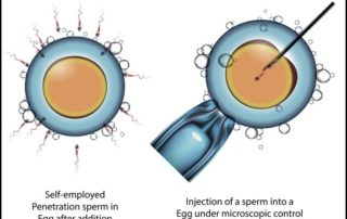 what is difference between ICSI and IVF
