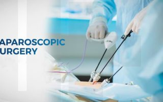 Crucial facts to know before undergoing laparoscopic surgery in India
