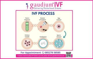 Step By Step Reflection of IVF Treatment